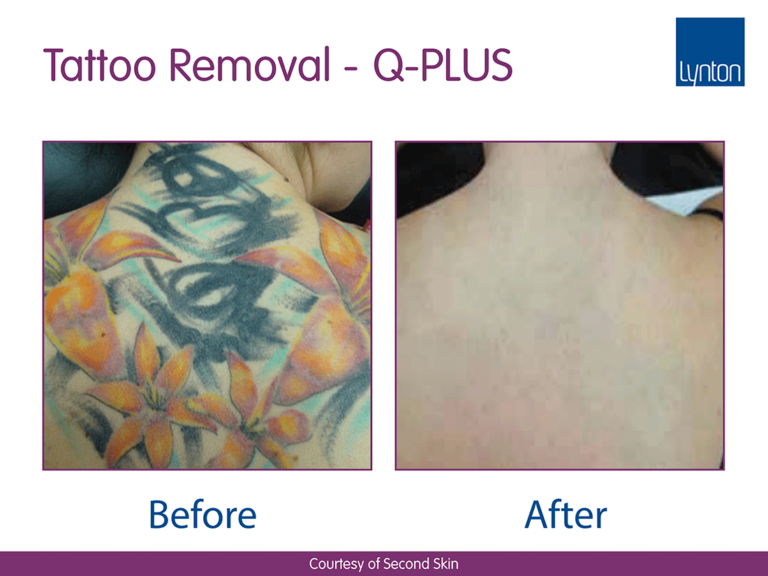 Clear skin q card offer image tattoo removal